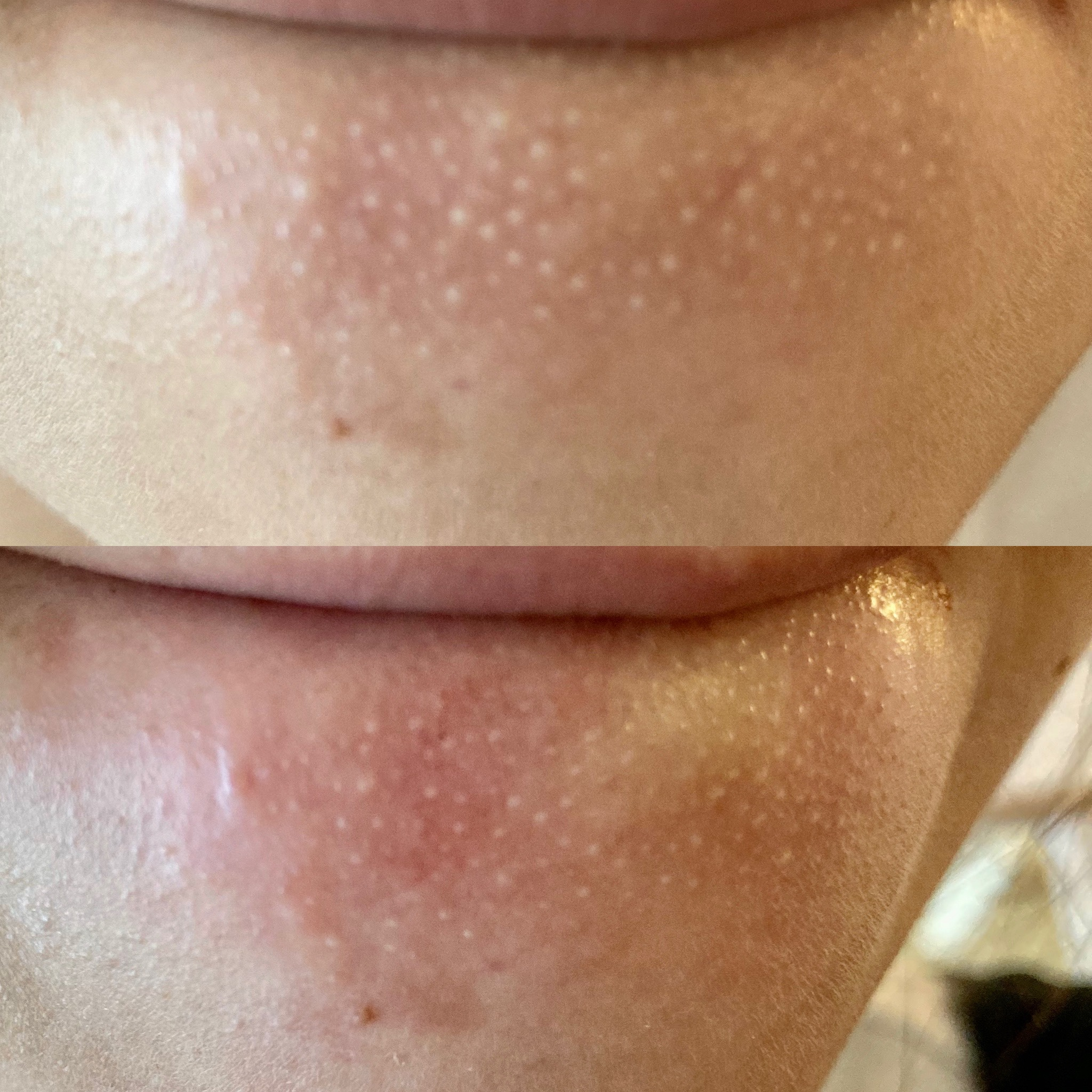 顎 白い ぶつぶつ あごのザラザラの原因は角栓だった!キレイに除去する方法 美容・化...